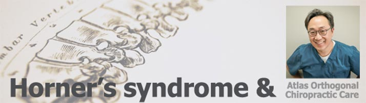 Chiropractor Duluth GA Chuel Hong Park Horner's Syndrome
